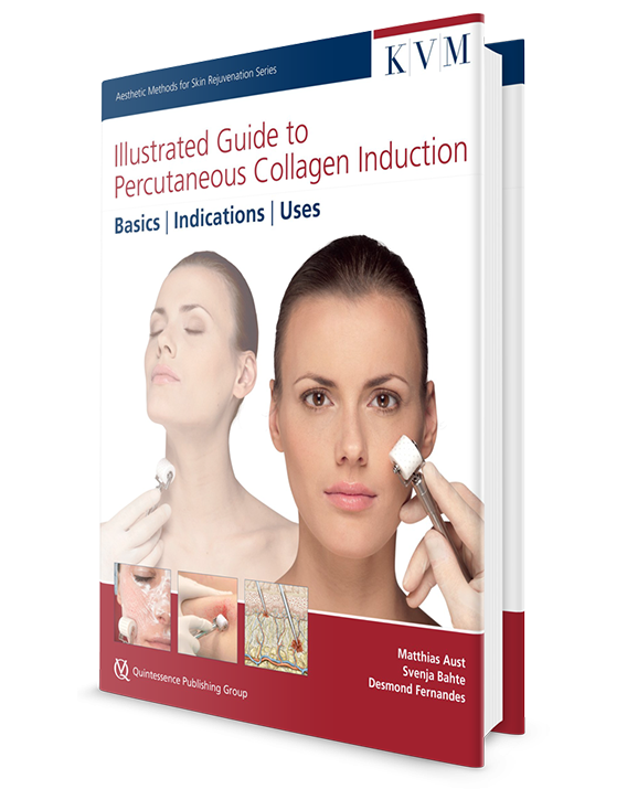Illustrated Guide to Percutaneous Collagen Induction